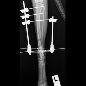 Radiographs of surgeries we have performed